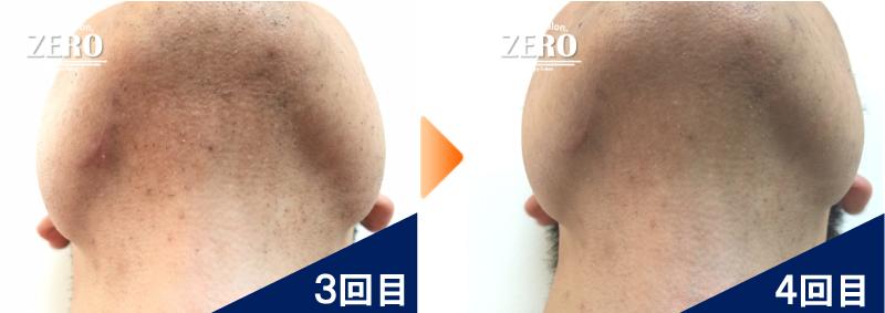 大阪市北区 不動産会社 勤務男性のあご裏脱毛と首周り脱毛3回目の写真と脱毛4回目の経過写真