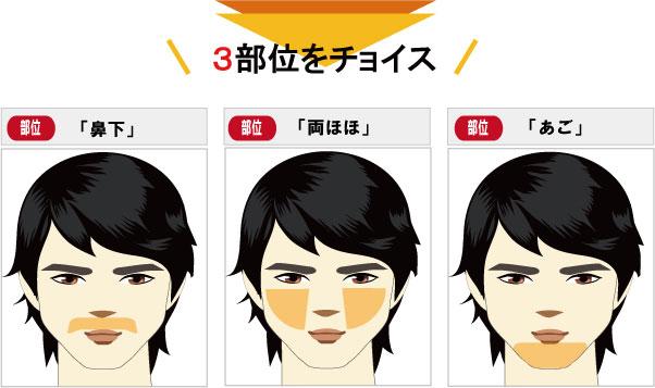 ヒゲ脱毛前8部位の中からお好きな3部位をお選び頂けます。例、鼻下脱毛、あごヒゲ脱毛、両頬脱毛