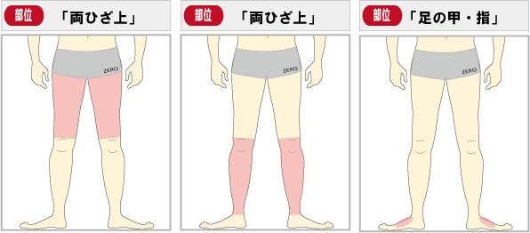 小倉足脱毛キャンペーン部位は短パン必須脱毛部位丸ごとカバー太もも脱毛、すね脱毛、足の甲と足の指脱毛部位になります。