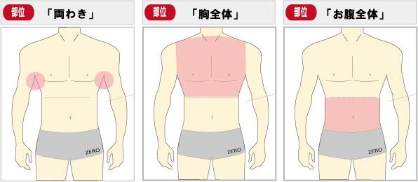 京都メンズ脱毛 キャンペーン第2弾お腹脱毛、胸毛脱毛、脇毛脱毛全3部位
