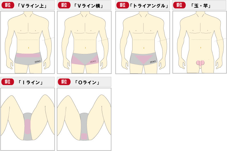 京都メンズ脱毛 キャンペーン第2弾男のVIO脱毛、陰部全6部位