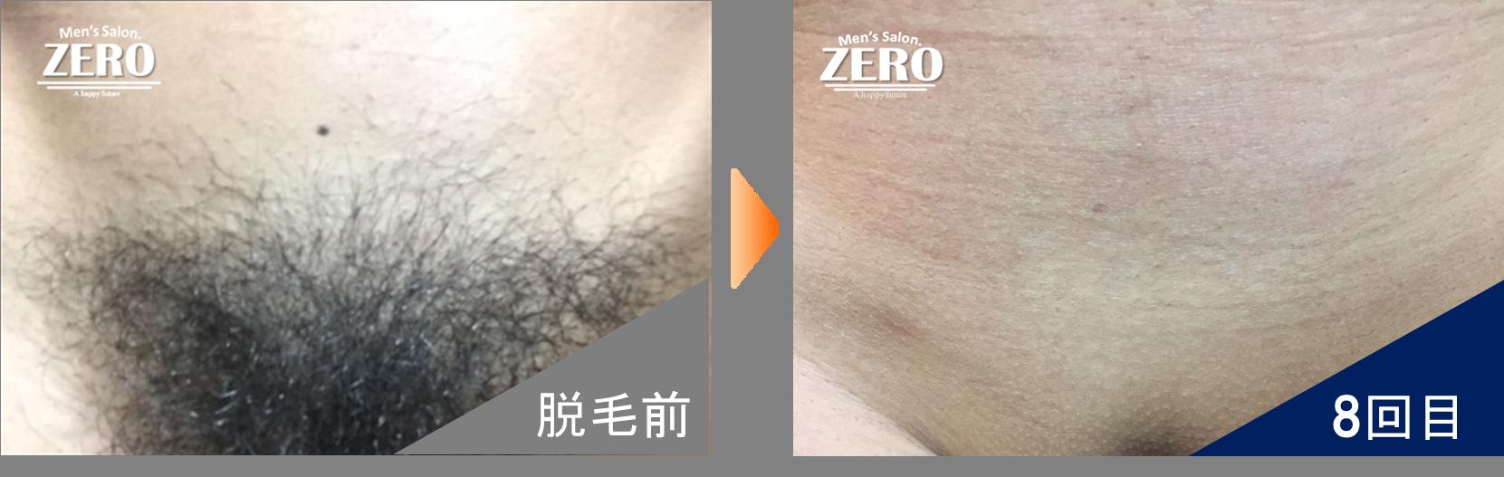 京都 男性VIO脱毛 結果写真 No.01
