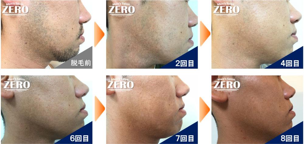 zero博多店のヒゲ脱毛効果写真(青髭解消されて清潔感もアップしております)