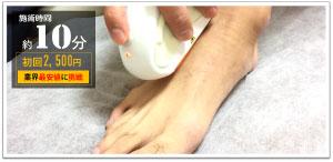 足の甲脱毛と足の指脱毛の初回足脱毛料金は2,500円